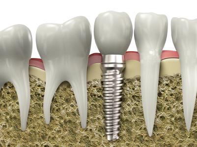 Irvine Implant Dentist