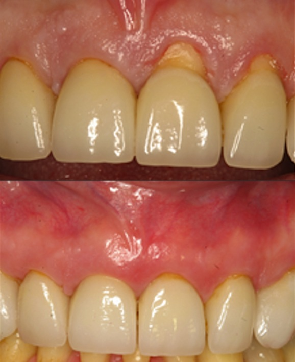 Before - After Pinhole Gum rejuvenation By Dr. John Chao